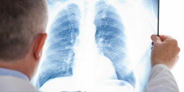На Прикарпатті витратять 35 млн грн на обласну програму протидії туберкульозу