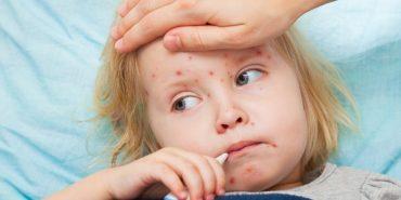 Прикарпатців закликають вакцинувати дітей від кору