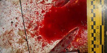 На Франківщині гість ножем порізав господаря квартири і свого приятеля. ФОТО
