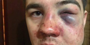 На Буковелі побили сина  депутата Чернігівської облради