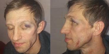 Резонансна справа: через побиття вчителя в київському ліцеї педагоги починають масштабний протест