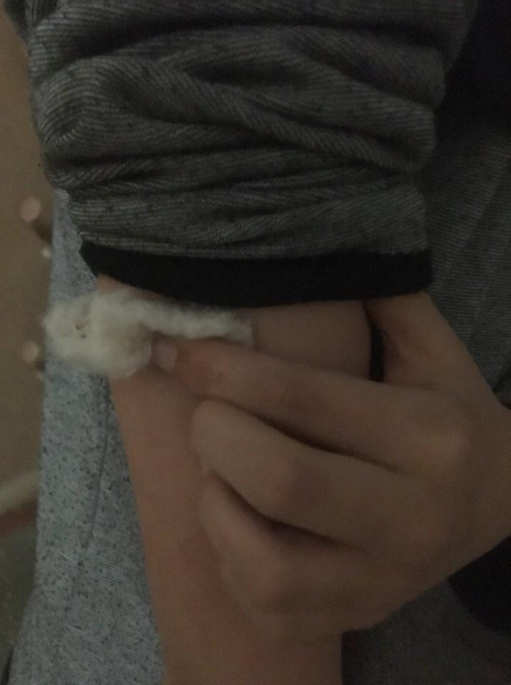 На Прикарпатті безпритульні собаки безпричинно накинулися на дитину і покусали її. ФОТО
